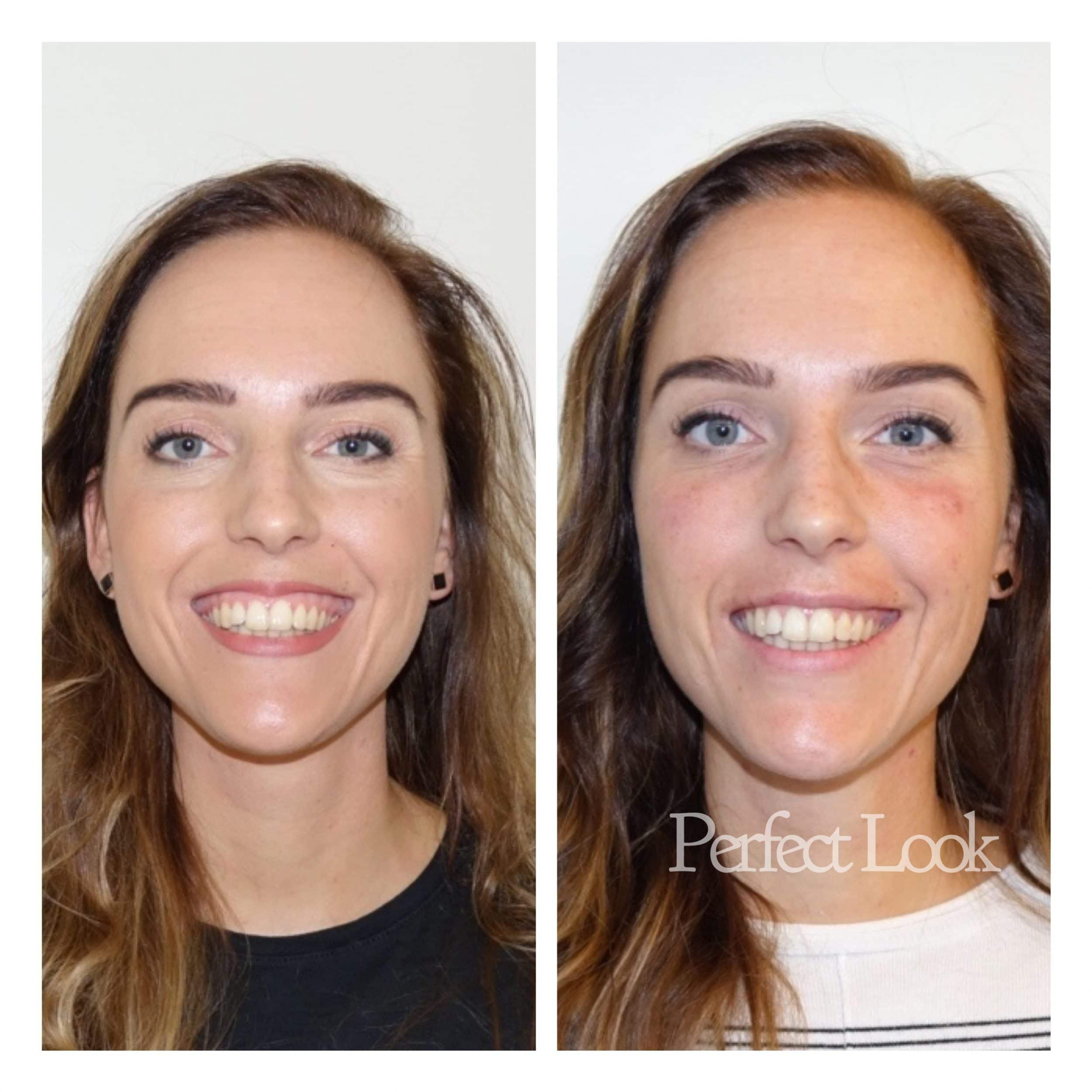 botox gummy smile resultaat na behandeling