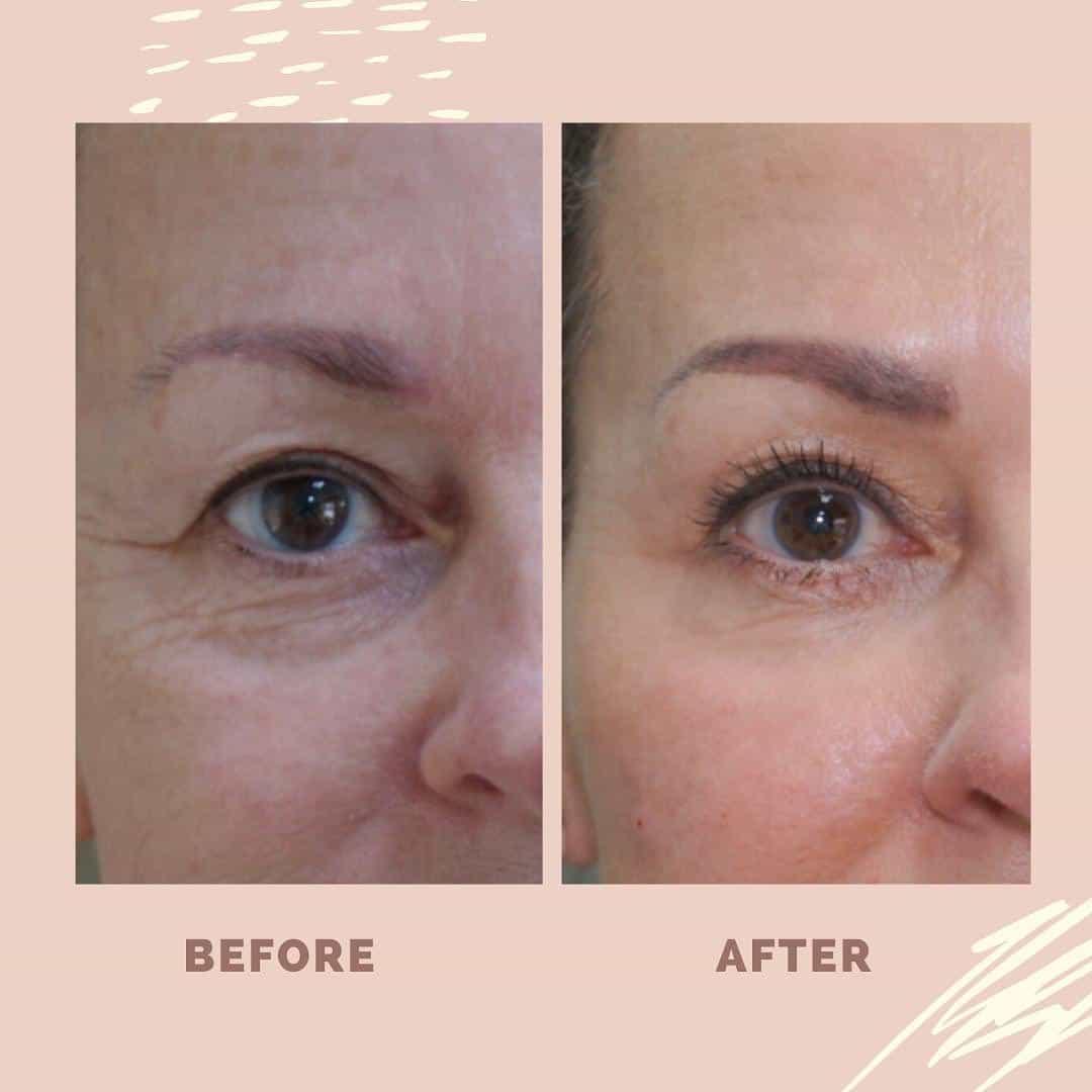 Profhilo ogen : verstrekking van de huid en vermindering van de lijntjes