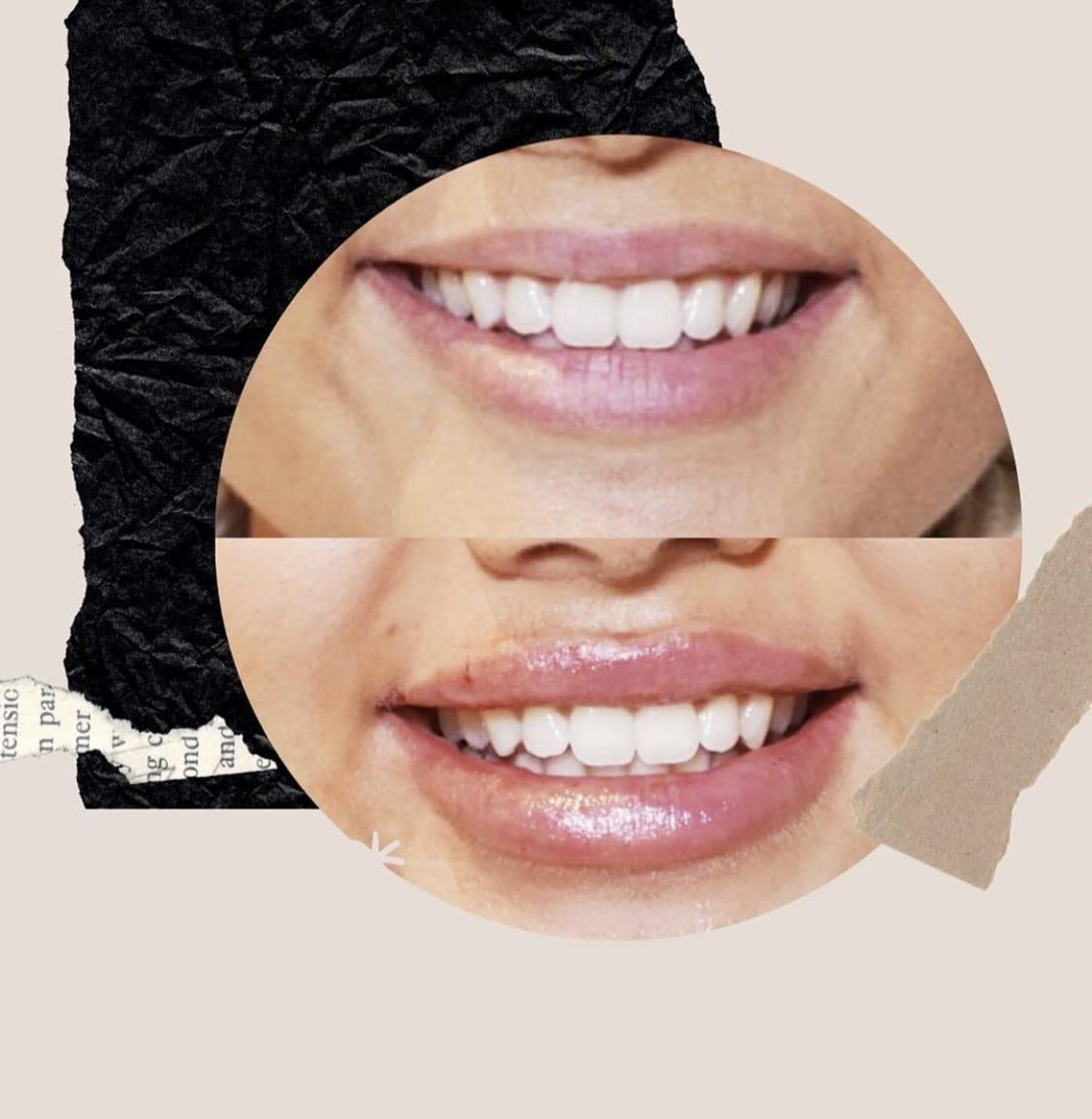 lippen opvullen met Lipfillers in Drenthe