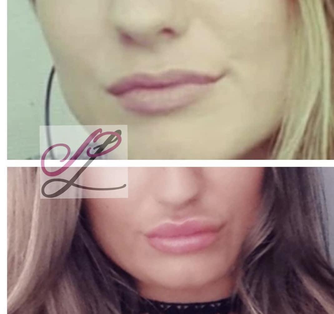 Lippen opvullen met fillers in Assen