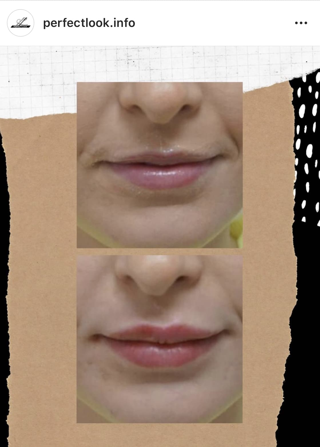 Lippen opvullen met lip fillers in Leeuwarden