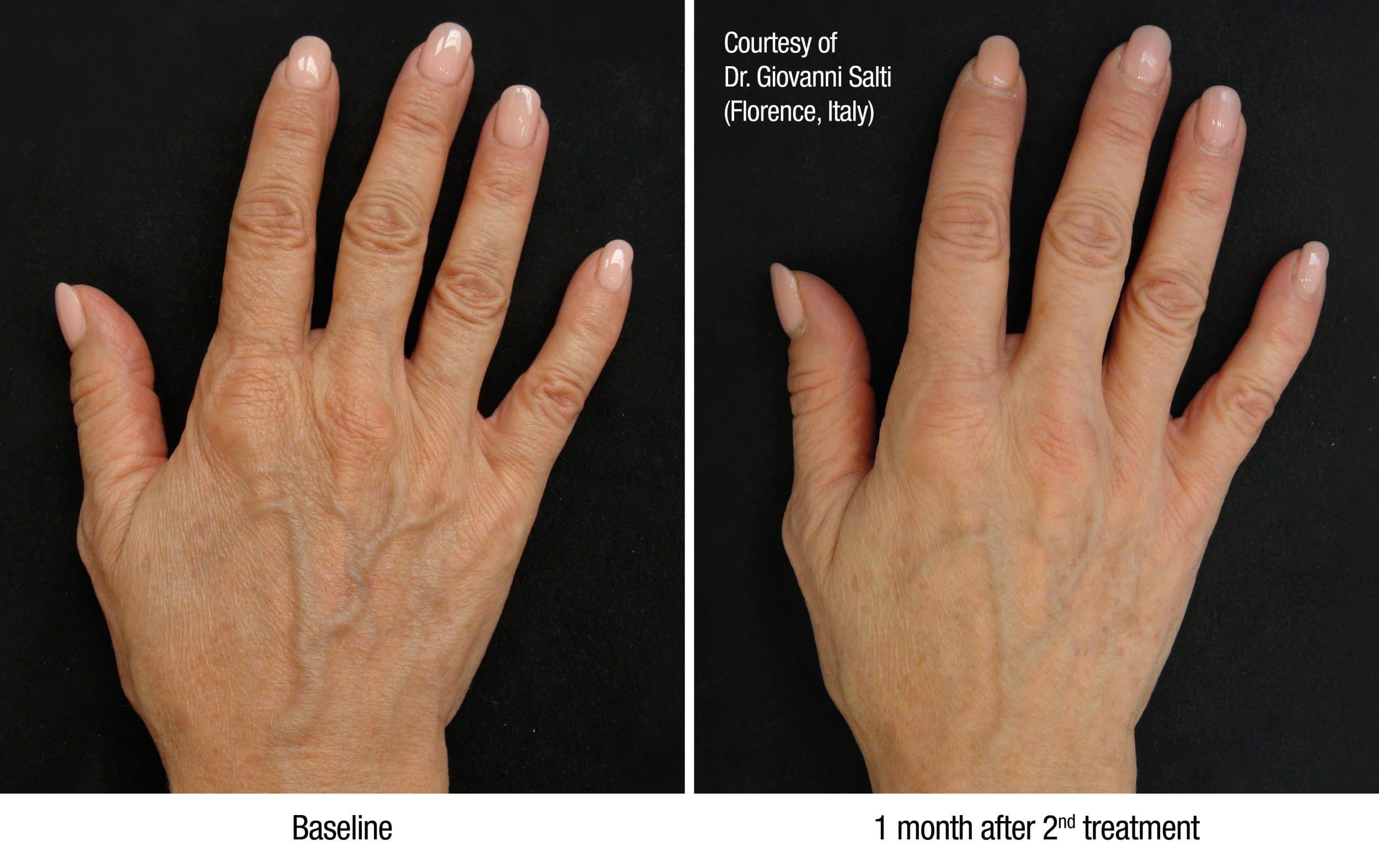 Profhilo- de filler waarmee op natuurlijk wijze huidverstrakking kan worden bereikt