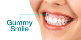 gummy smile botox bij perfectlook groningen