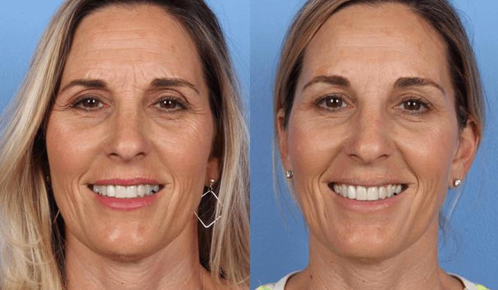 bunny lines botox behandeling voor en na