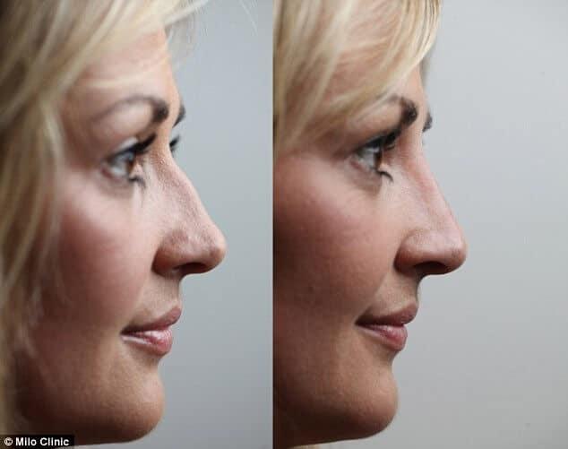 neusfillers voor en na