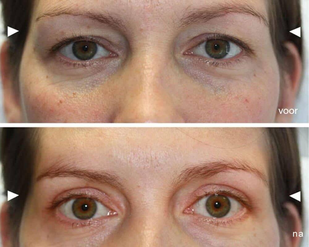 ooglidcorrectie groningen