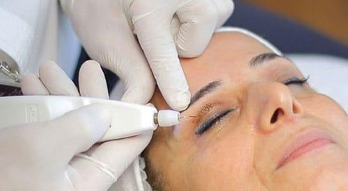 Plexr behandeling oogleden