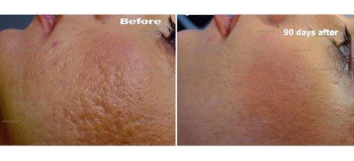 Plexr-behandeling-verwijderen-acne-littekens