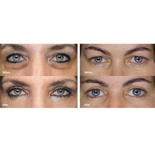 plexr ooglidcorrectie zonder operatie voor en na foto's