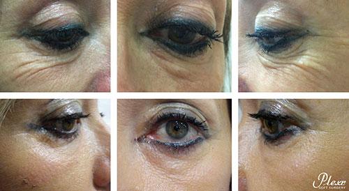 plexr behandeling rondom ogen voor en na