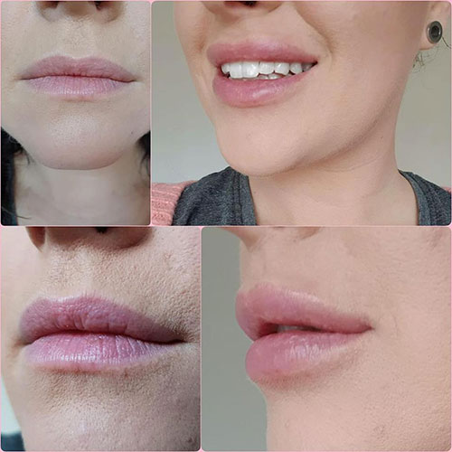 Een tijdelijk, maar veilig en langdurig resultaat met lip fillers