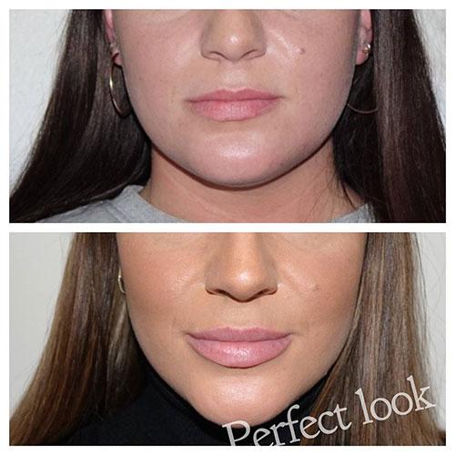 Mooie volle lippen door een lip filler behandeling bij Perfect Look