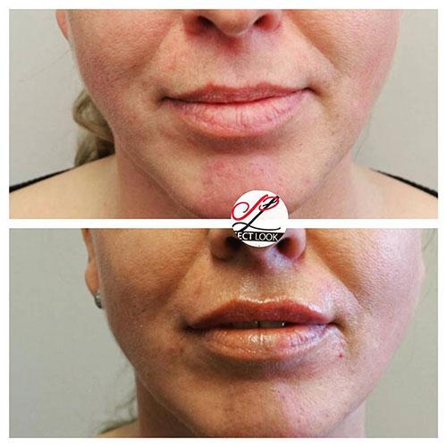 Lip fillers voor en na de behandeling