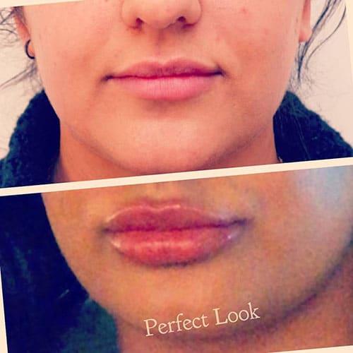 voor en na de lipfiller behandeling