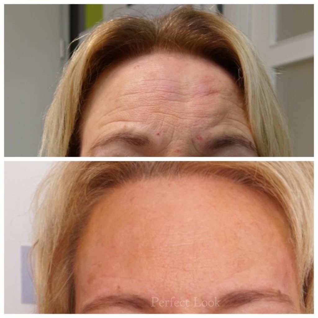 Botox behandeling van het voorhoofd. Dit geeft een frisse, minder vermoeide indruk.