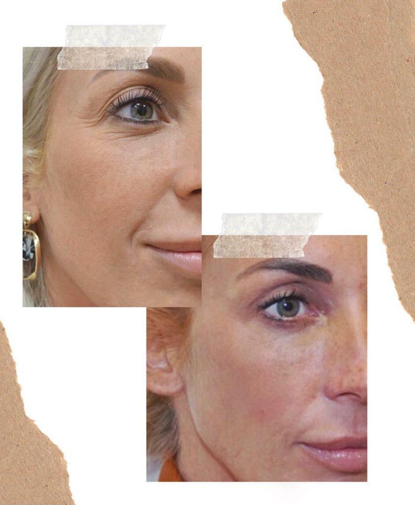 voor- en na foto's wenkbrauwlift botox